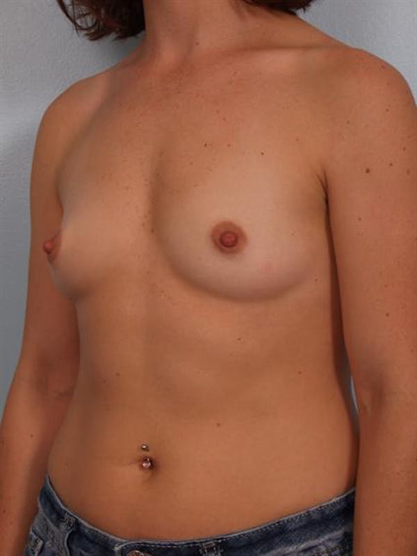 Breast Augmentation Gallery - Patient 1310965 - Image 5