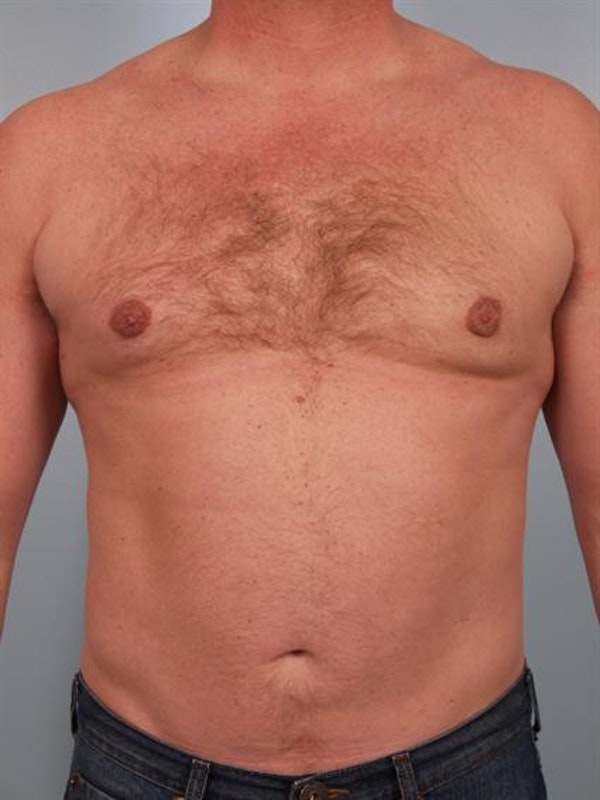 Male Breast/Areola Reduction Gallery - Patient 1310967 - Image 2
