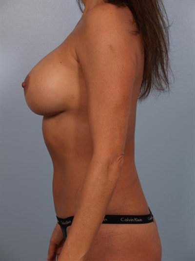 Mommy Makeover Gallery - Patient 1310969 - Image 4