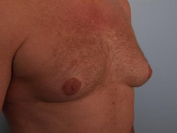 Male Breast/Areola Reduction Gallery - Patient 1310967 - Image 3