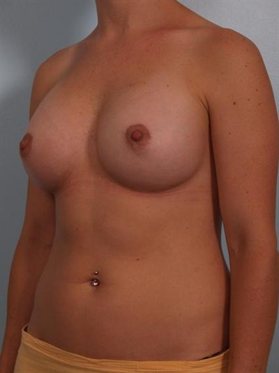 Breast Augmentation Gallery - Patient 1310965 - Image 6