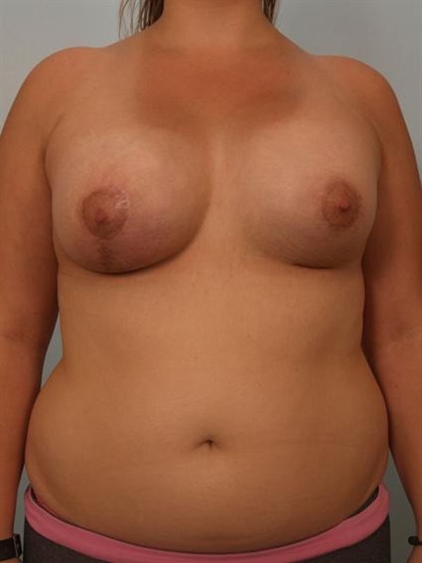 Breast Lift Gallery - Patient 1310970 - Image 2