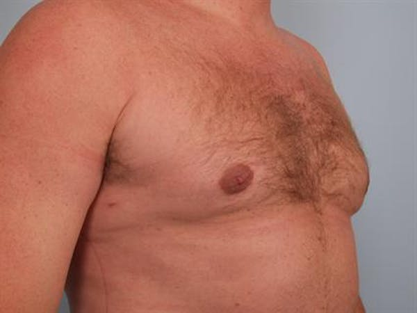Male Breast/Areola Reduction Gallery - Patient 1310967 - Image 4