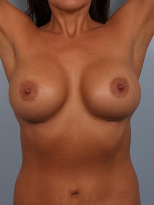 Mommy Makeover Gallery - Patient 1310969 - Image 6