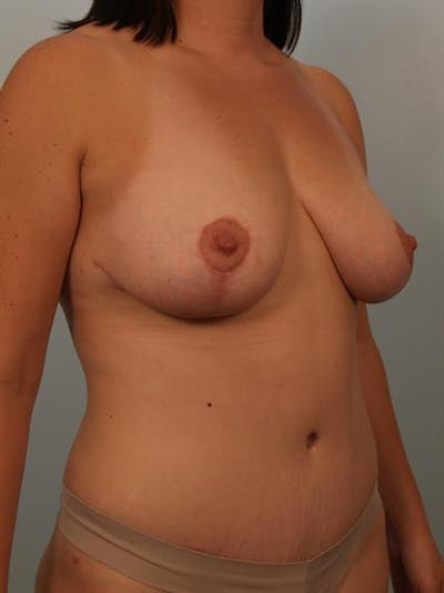 Tummy Tuck Gallery - Patient 1310966 - Image 4