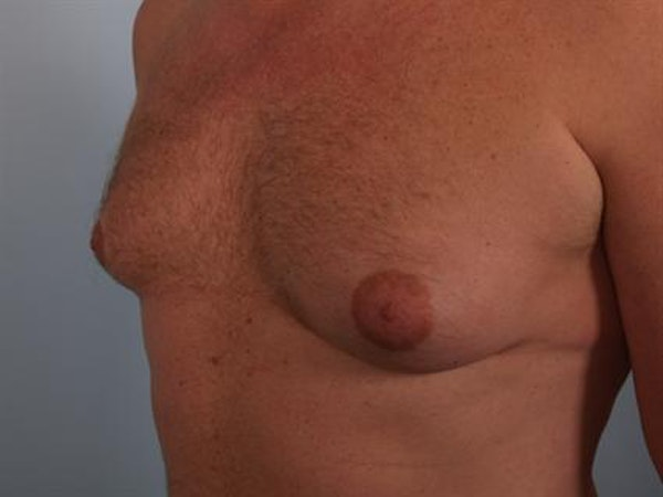 Male Breast/Areola Reduction Gallery - Patient 1310967 - Image 5