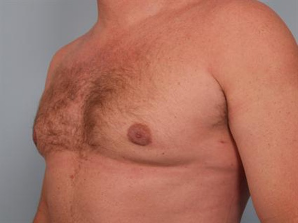 Male Breast/Areola Reduction Gallery - Patient 1310967 - Image 6