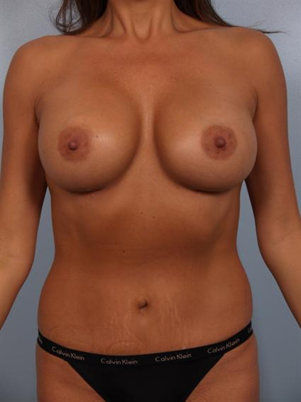 Mommy Makeover Gallery - Patient 1310969 - Image 2