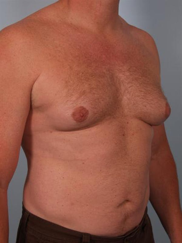 Male Breast/Areola Reduction Gallery - Patient 1310967 - Image 7
