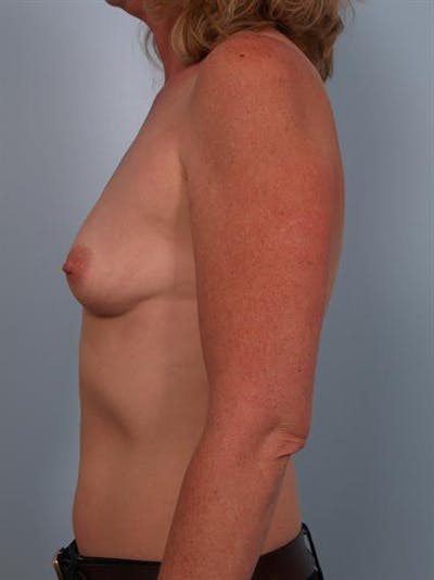 Breast Augmentation Gallery - Patient 1310975 - Image 1