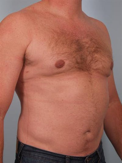 Male Breast/Areola Reduction Gallery - Patient 1310967 - Image 8