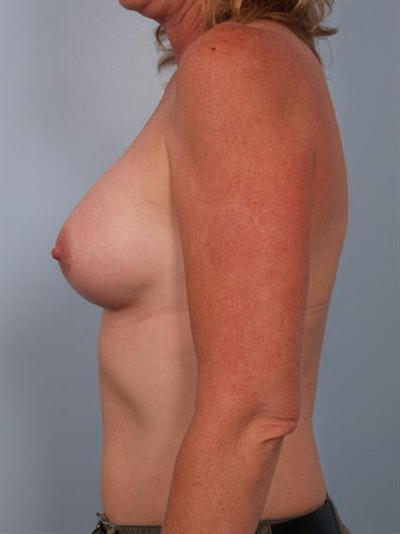 Breast Augmentation Gallery - Patient 1310975 - Image 2