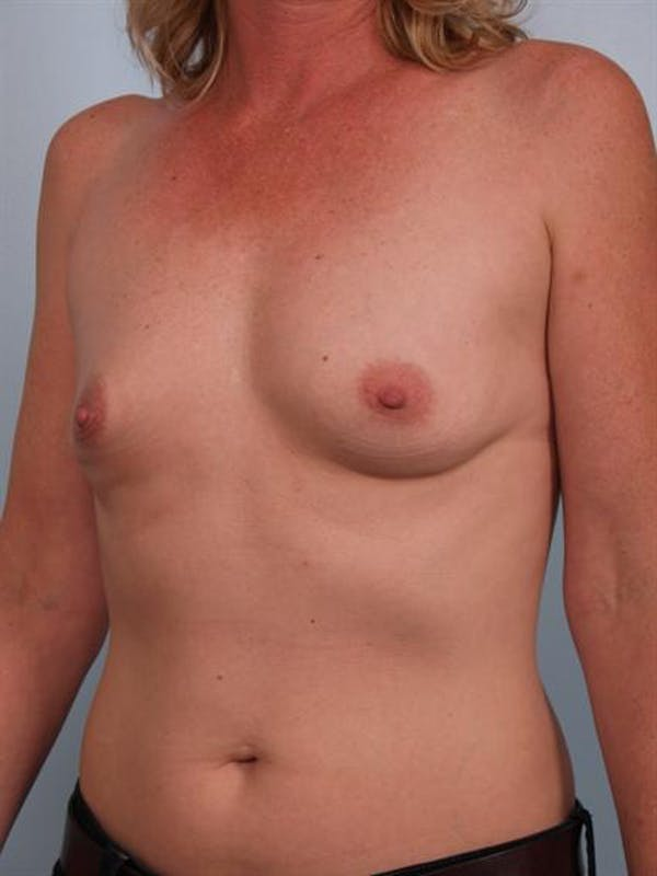 Breast Augmentation Gallery - Patient 1310975 - Image 3