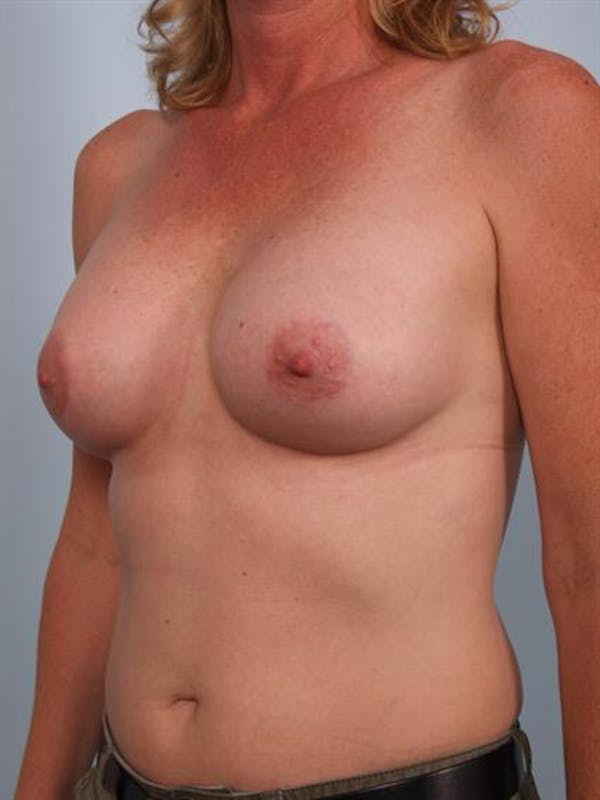 Breast Augmentation Gallery - Patient 1310975 - Image 4