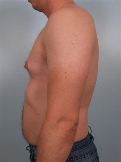 Male Breast/Areola Reduction Gallery - Patient 1310974 - Image 1
