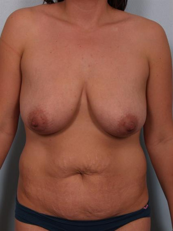 Mommy Makeover Gallery - Patient 1310977 - Image 1