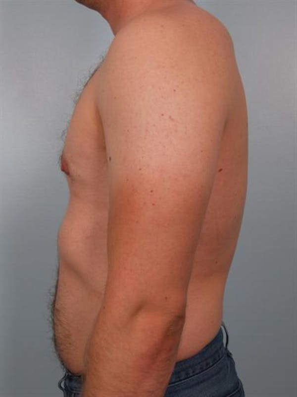 Male Breast/Areola Reduction Gallery - Patient 1310974 - Image 2