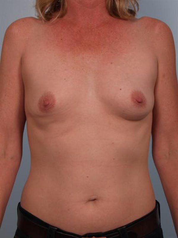Breast Augmentation Gallery - Patient 1310975 - Image 5
