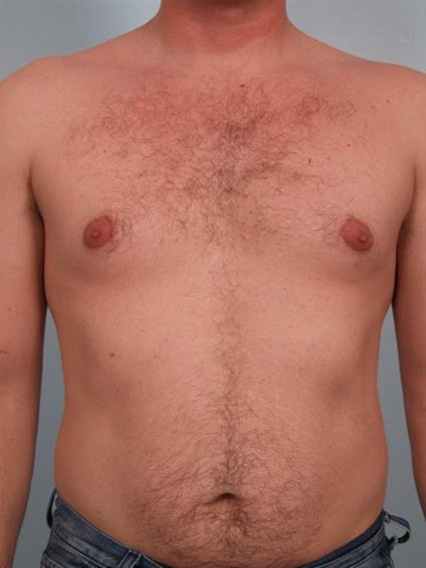 Male Breast/Areola Reduction Gallery - Patient 1310974 - Image 3