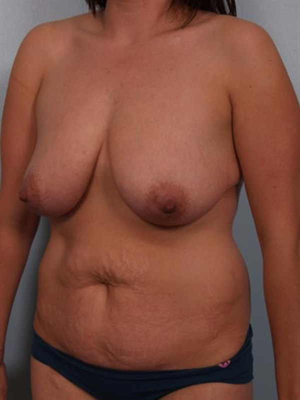 Mommy Makeover Gallery - Patient 1310977 - Image 3