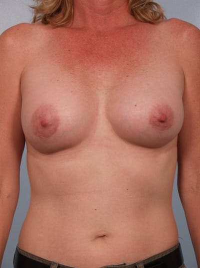 Breast Augmentation Gallery - Patient 1310975 - Image 6