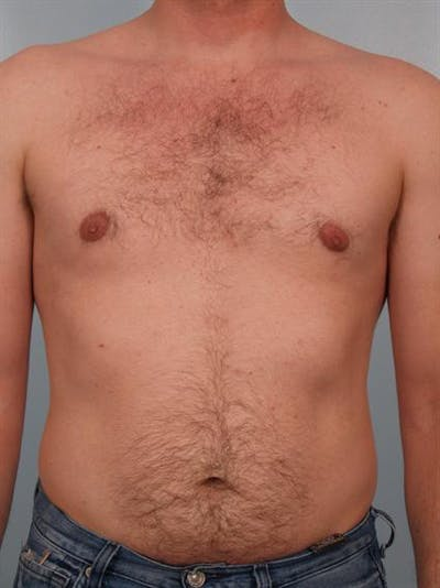 Male Breast/Areola Reduction Gallery - Patient 1310974 - Image 4