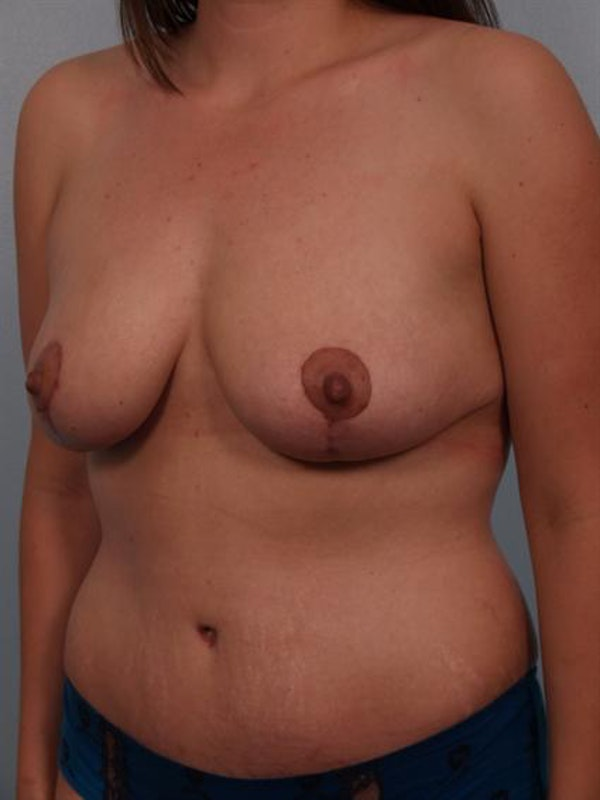 Mommy Makeover Gallery - Patient 1310977 - Image 4