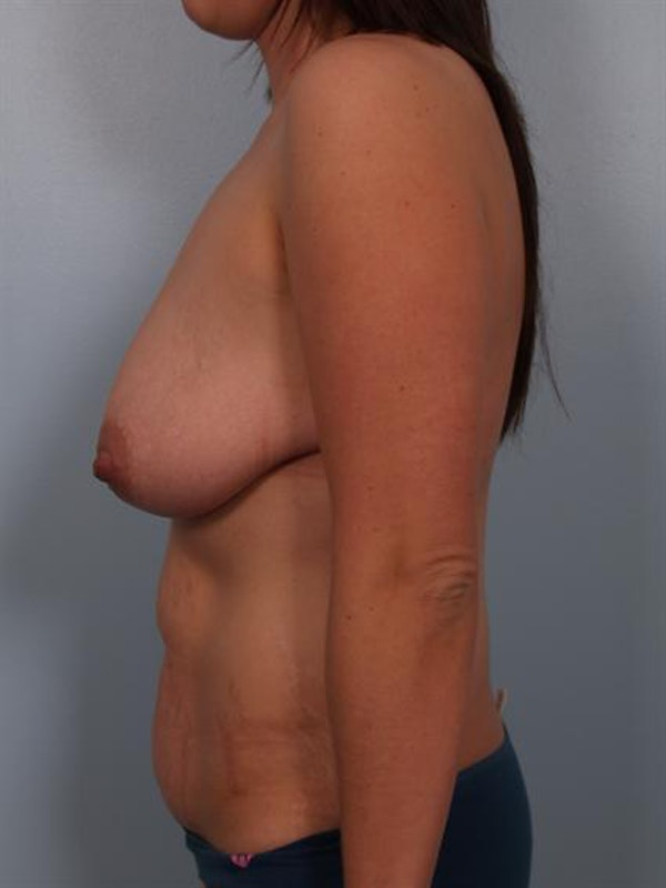 Mommy Makeover Gallery - Patient 1310977 - Image 5