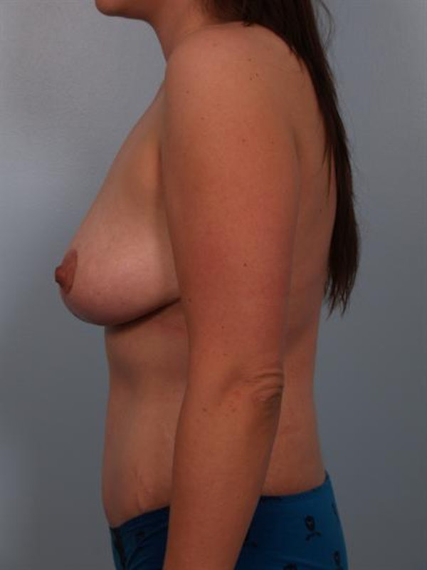 Mommy Makeover Gallery - Patient 1310977 - Image 6