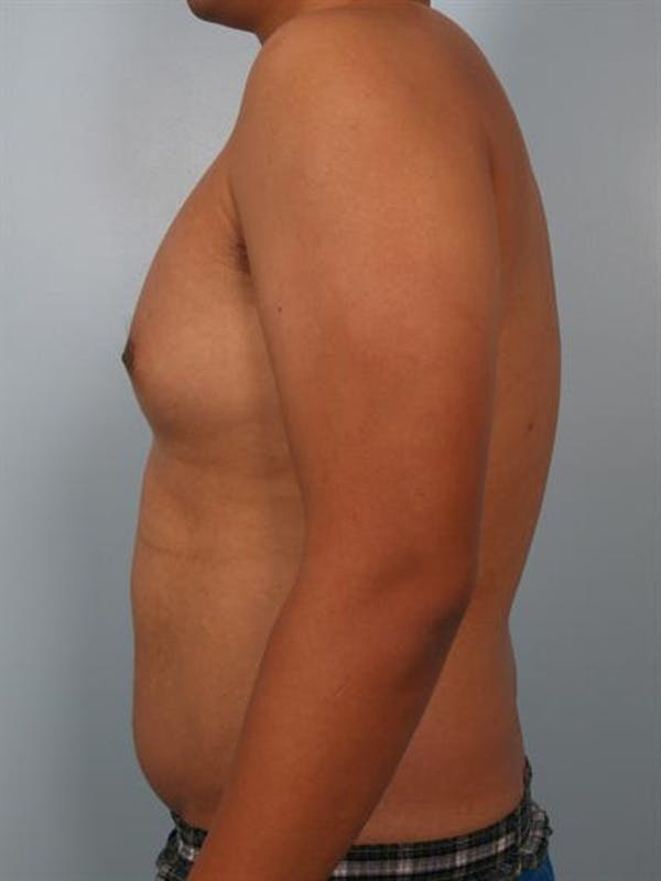 Male Breast/Areola Reduction Gallery - Patient 1310980 - Image 1