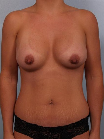 Tummy Tuck Gallery - Patient 1310979 - Image 4