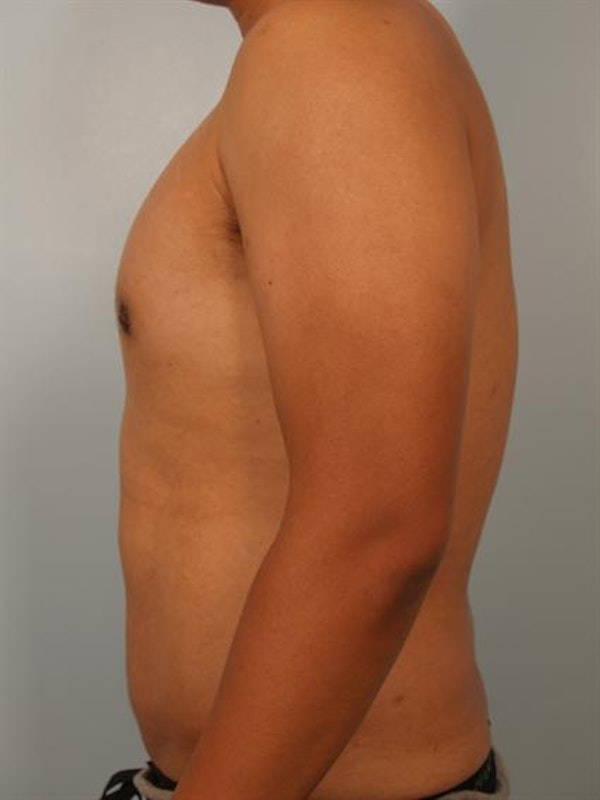 Male Breast/Areola Reduction Gallery - Patient 1310980 - Image 2