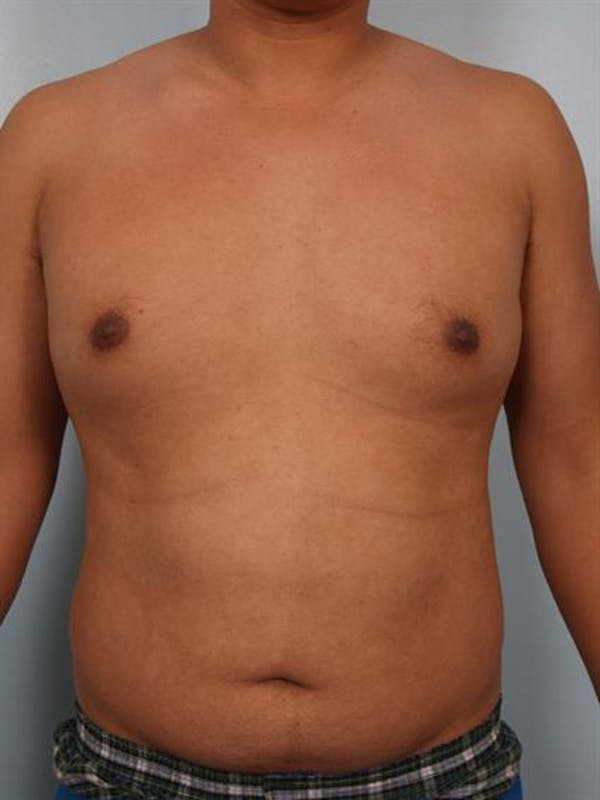 Male Breast/Areola Reduction Gallery - Patient 1310980 - Image 3