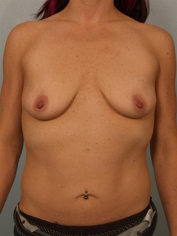 Breast Augmentation Gallery - Patient 1310982 - Image 3