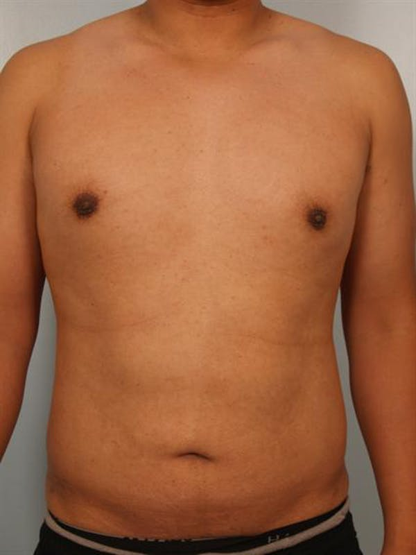 Male Breast/Areola Reduction Gallery - Patient 1310980 - Image 4