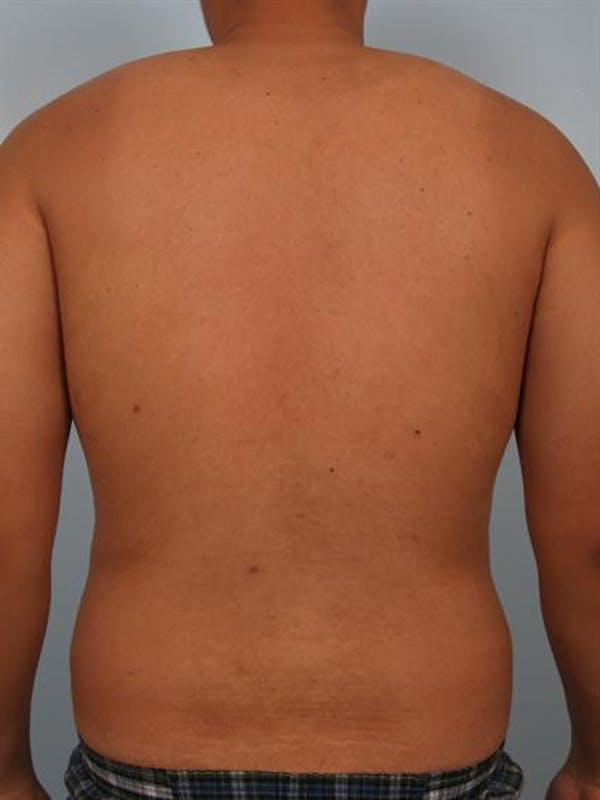Male Breast/Areola Reduction Gallery - Patient 1310980 - Image 5