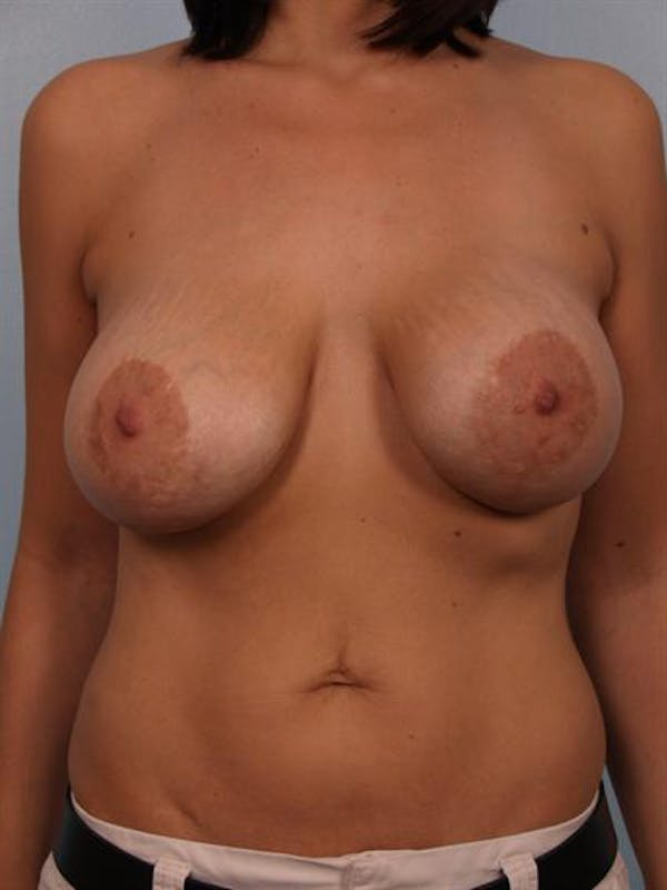 Breast Lift Gallery - Patient 1310985 - Image 1