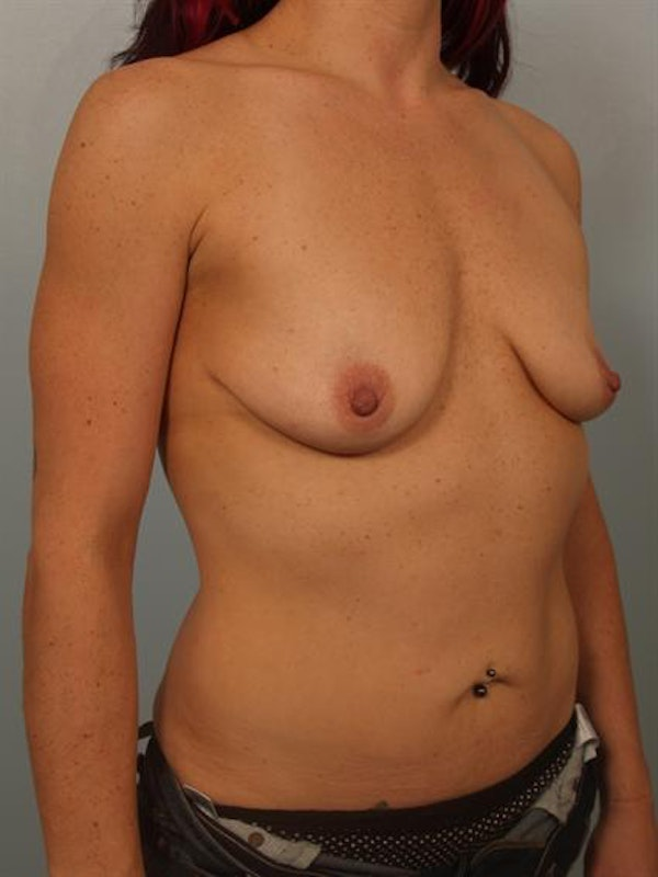 Breast Augmentation Gallery - Patient 1310982 - Image 5
