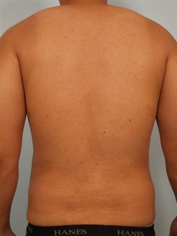 Male Breast/Areola Reduction Gallery - Patient 1310980 - Image 6