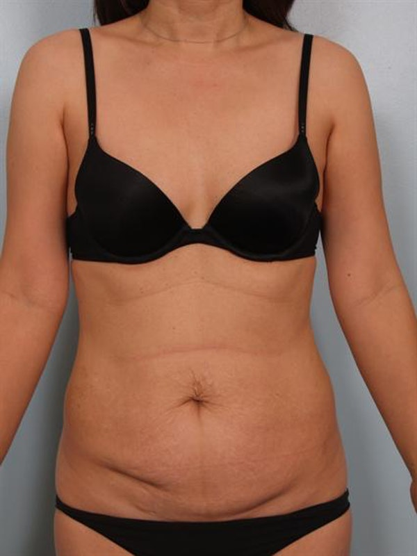 Tummy Tuck Gallery - Patient 1310983 - Image 1