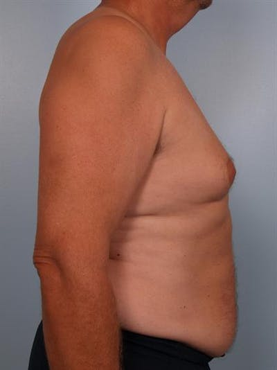 Male Breast/Areola Reduction Gallery - Patient 1310984 - Image 1