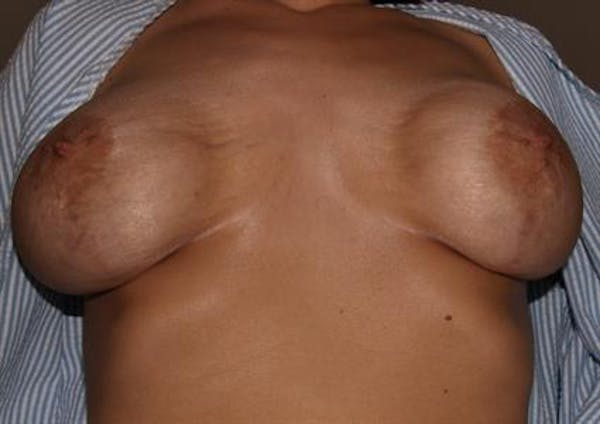 Breast Lift Gallery - Patient 1310985 - Image 7