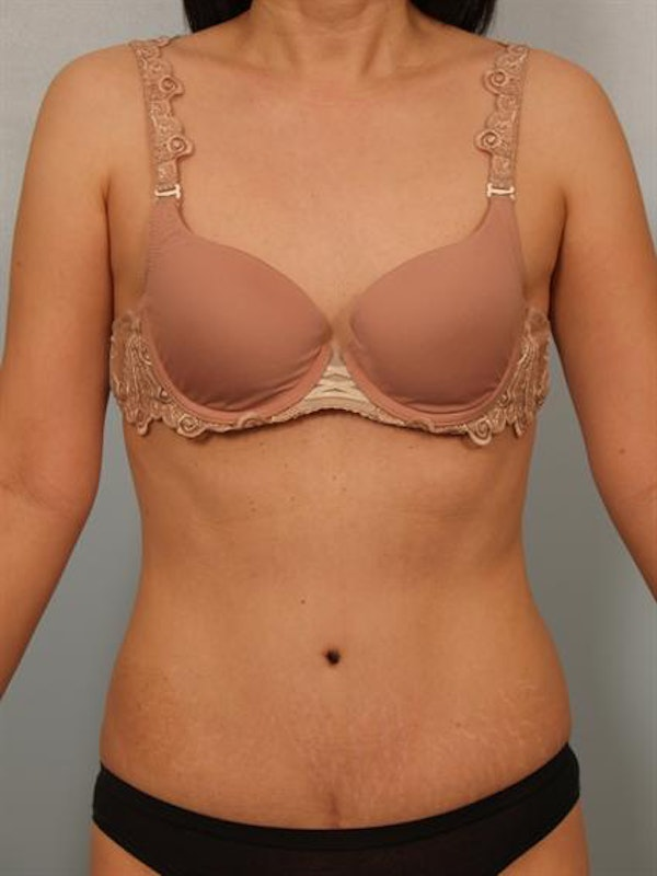 Tummy Tuck Gallery - Patient 1310983 - Image 2