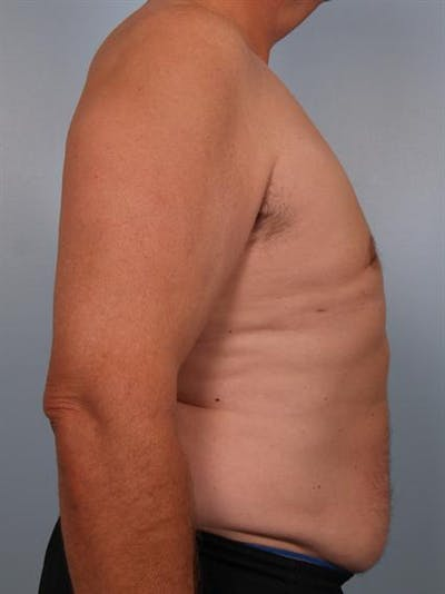 Male Breast/Areola Reduction Gallery - Patient 1310984 - Image 2