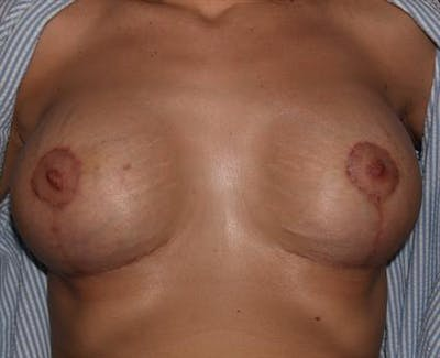 Breast Lift Gallery - Patient 1310985 - Image 8