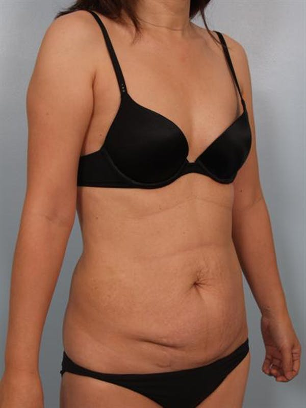 Tummy Tuck Gallery - Patient 1310983 - Image 3