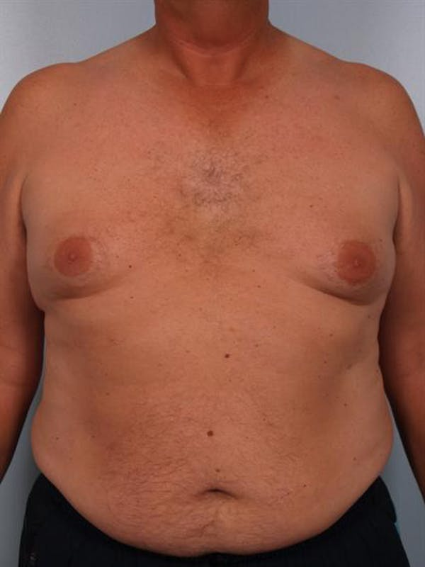 Male Breast/Areola Reduction Gallery - Patient 1310984 - Image 3