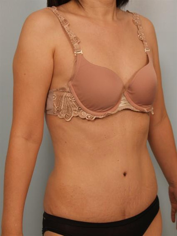 Tummy Tuck Gallery - Patient 1310983 - Image 4