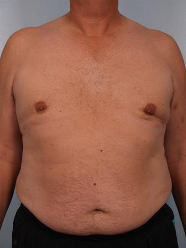 Male Breast/Areola Reduction Gallery - Patient 1310984 - Image 4