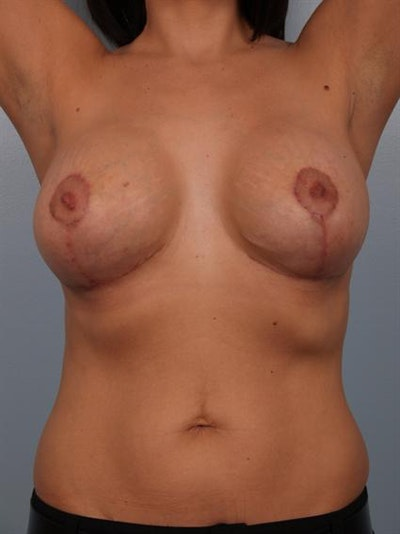 Breast Lift Gallery - Patient 1310985 - Image 10